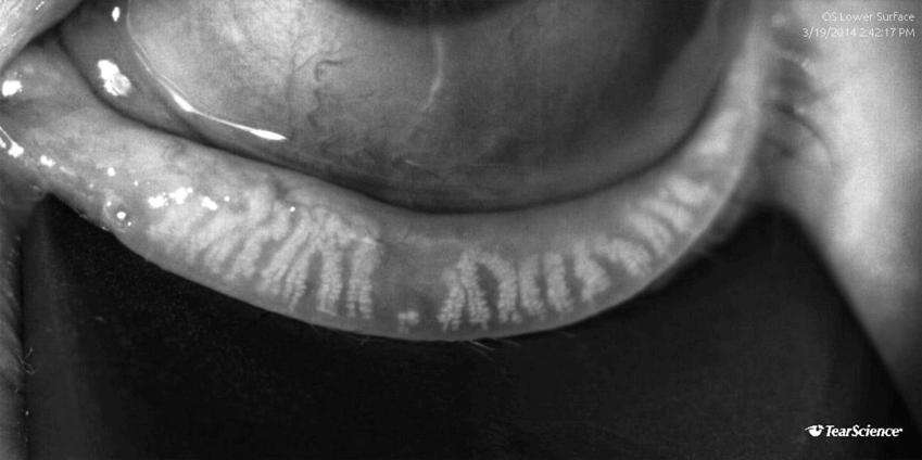 Lipiscan ™ Dynamic Meibomian Imaging